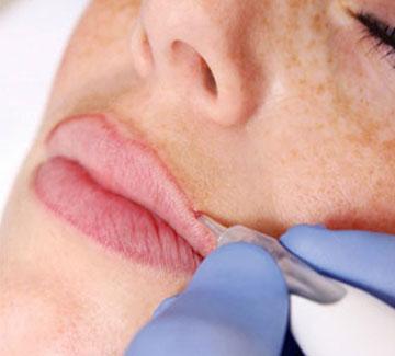 laura-campi-dermopigmentazione